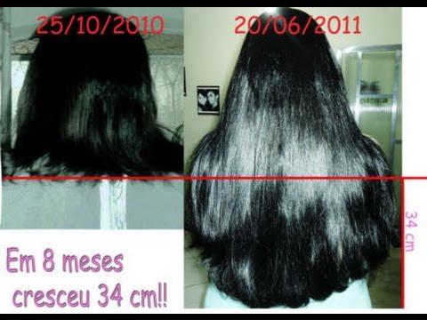 Antes e Depois Resultados Monovin A