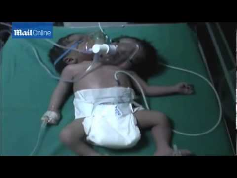 Baby born with TWO HEADS to mother in northern India