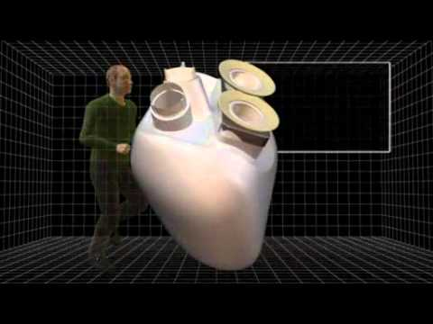 Carmat's longer-lasting artificial heart successfully implanted in patient