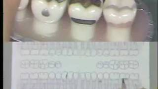 Dental Charting Procedures