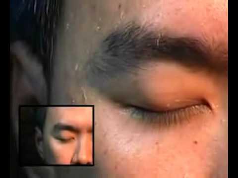 паразиты коже человека лечение