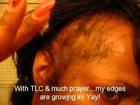 how to grow my hairline