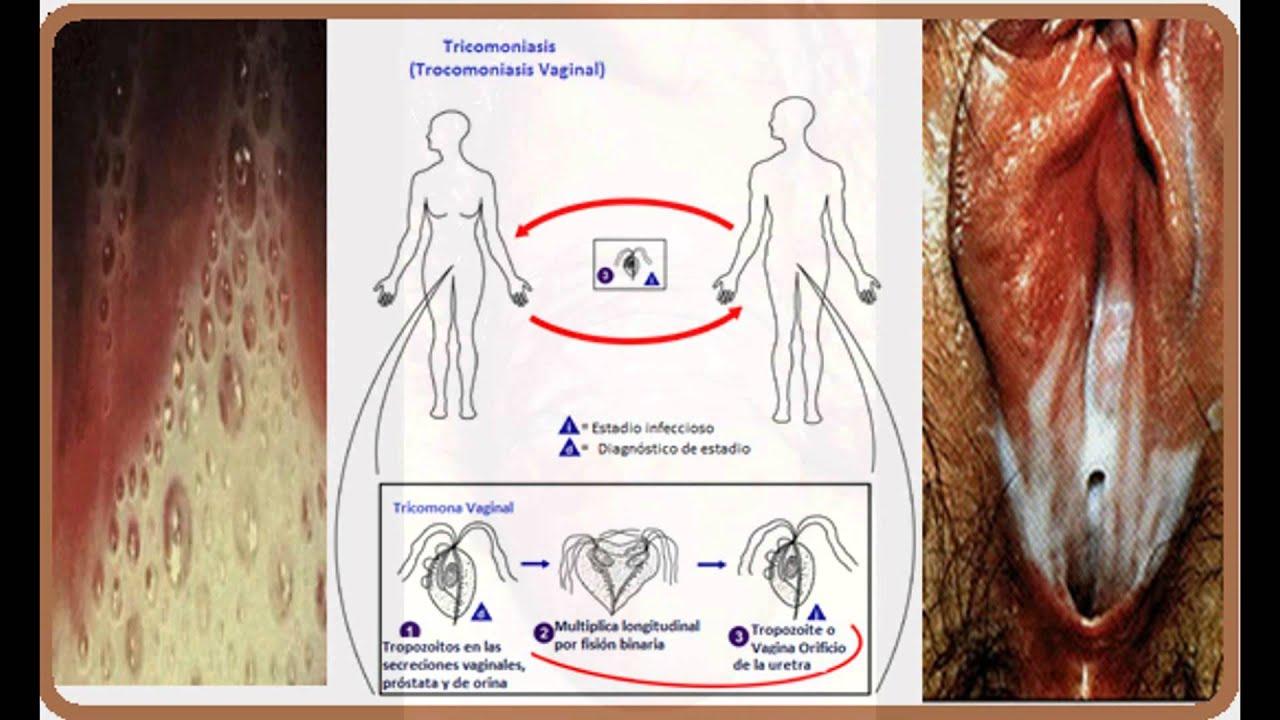 enfermedades de transmision sexualidad sintomas herpes