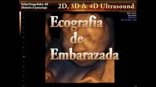 Ecografia 4D Embarazo De 23 Semanas Clinica Ginecologica