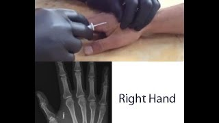 RFID Microchip Will ALL Humans Be Chipped By 2017?