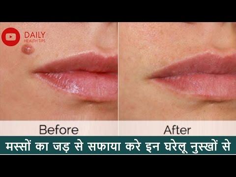 कैसे मस्सों से छुटकारा पाएँ मस्सों का घरेलू उपचार   Home remedies for warts In Hindi