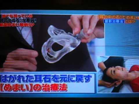 良性 発作 性 頭 位 めまい 症 ためして ガッテン NHKのガッテンで放送された良性発作性頭位めまい症の治療方法(HUS)