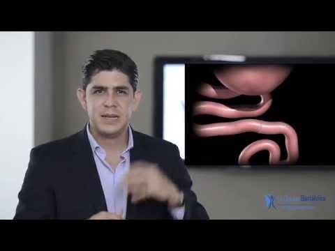 Cirugía de Bypass Gástrico por Laparoscopia
