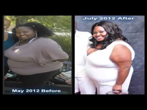 Help For Obese People Obesity Help