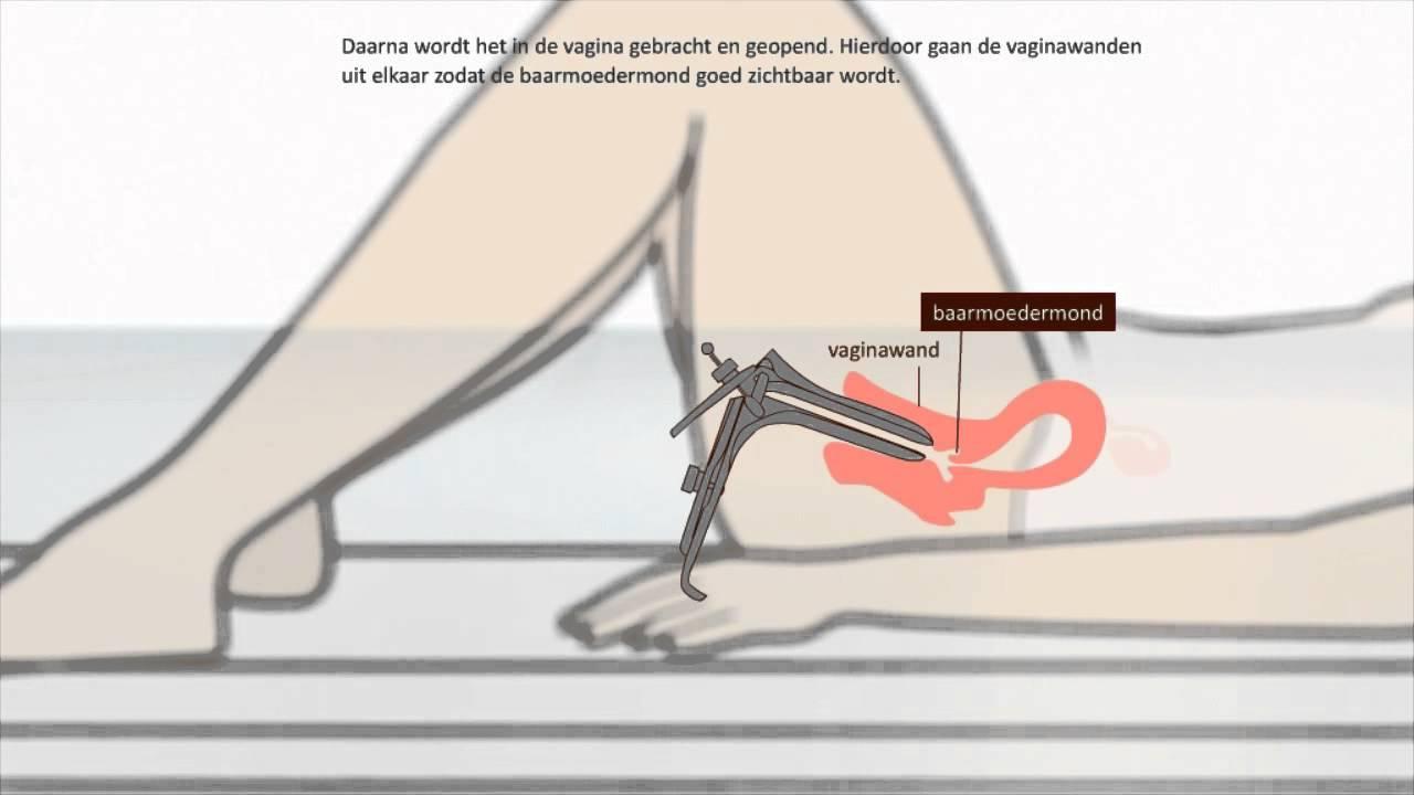 sperma in kut negerin vingert