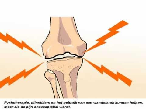 artrose knie behandeling