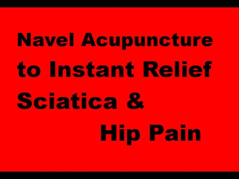 Navel Acupuncture: Navel Acupuncture to treat/instant relief Sciatica and Hip pain