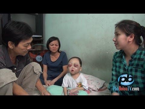 Bé gái xấu số, 2 tuổi đã bị mù mắt và bệnh ung thư máu