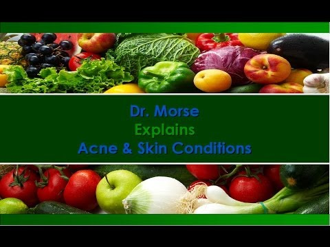 Dr. Morse Explains Acne & Skin Conditions