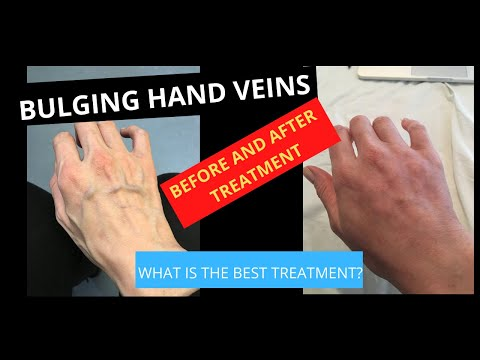 Varicose Veins on the Hands Treatment by Hand Rejuvenation