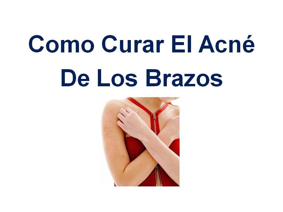 COMO QUITAR EL ACNE DE LOS BRAZOS  Como quitar las cicatrices del acne  You # Wasbak Zit Los_081955