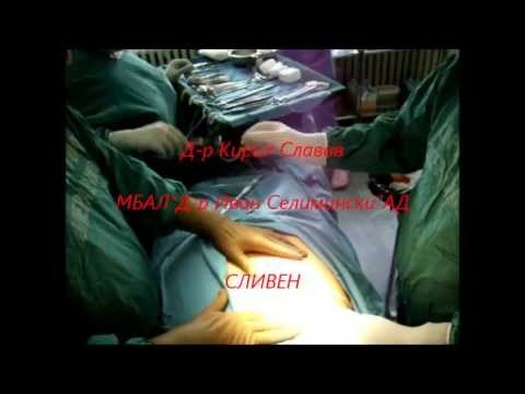 Open laparotomy by peritonitis acuta billiaris.Cholecystectomy with epidural anaesthesia
