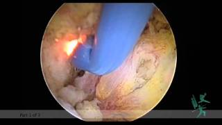 Arthroscopic AC-Joint Repair.m4v