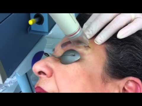 Eyebrow tattoo removal using the yag 5 palomar laser youtube for Eyebrows tattoo removal laser