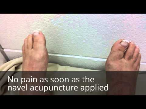 Navel Acupuncture treatment for joints pain, Acid Reflux, Neck pain,  Sinus Issue, Depression.