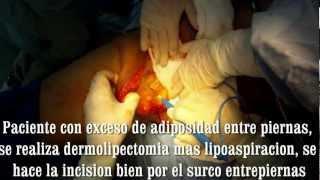 Cirugia De Entrepiernas, Por El Dr. Alberto FERRIOLS