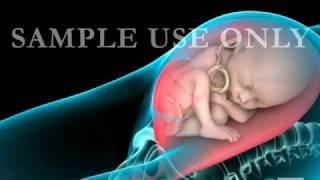Cesarean Section (C-Section)