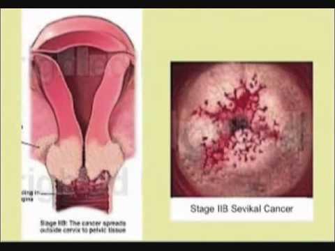 cegah kanker serviks