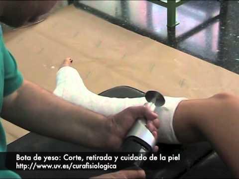 C mo poner y retirar una bota de yeso en la pierna youtube - Como instalar una bisagra de 180 grados ...
