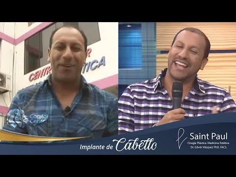 Implante capilar Marco Antonio, Dr. Edwin Vasquez Ph.D.
