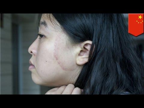 iPhone poparzył twarz kobiety w Chinach.