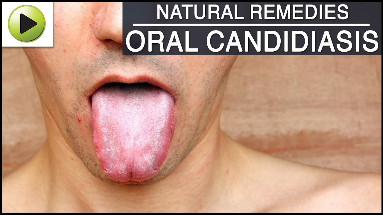 Natural Remedies For Yeast Infection On Tongue