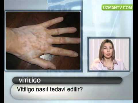 Vitiligo hastalığı tedavisi