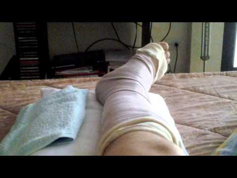 Recuperación de rotura del tendon de Aquiles.Dia 5