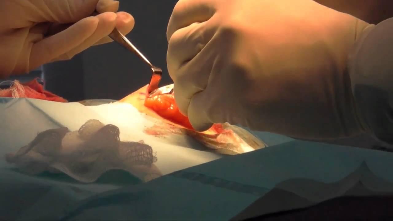 Lipoma Removal Surgery