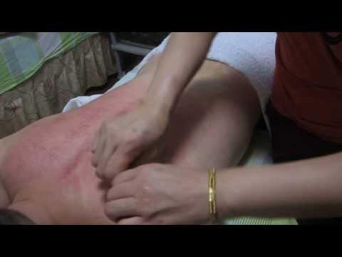 Traditional Chinese Medicine TCM Gua Sha therapy treatment china 刮痧 Cạo gió กัวซ่า