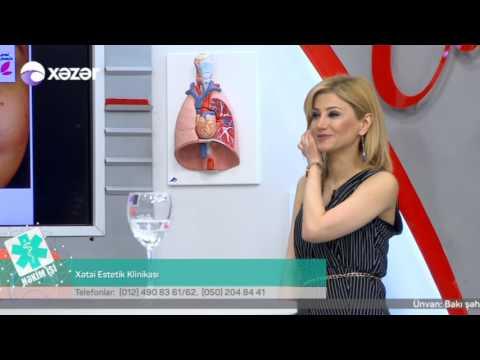 18 04 2017 Hekim ishi Xetai Estetik Klinikasi Estetik cerrah Sami Samin