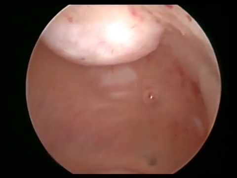 Pin hole cervix, kissing myoma by osama shawki