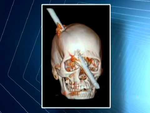 Acidente Vergalhão na Cabeça, Homem atingido por vergalhão na cabeça continua internado