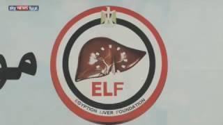 خطة مصرية للقضاء على التهاب الكبد الوبائي |