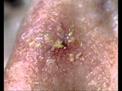 Skin Conditions | Hives | Acne | MedlinePlus