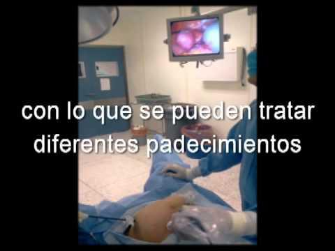 Laparoscopia en ginecologia
