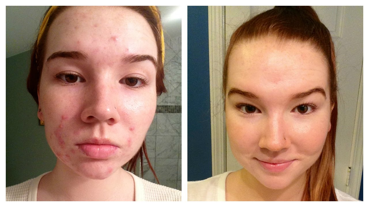 Accutane Before And After Pictures Mild Acne