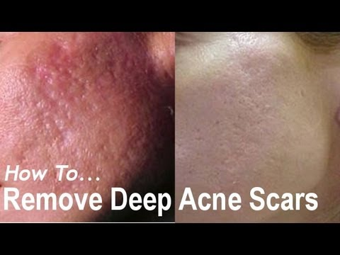 REMOVE DEEP ACNE SCARS? Acne Scarring Removal Treatments! AQA #1 ...