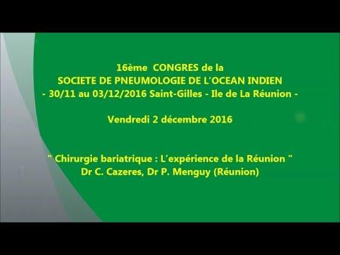 Chirurgie bariatrique, L'expérience de la Réunion. Dr C. Cazeres, Dr P. Menguy Réunion