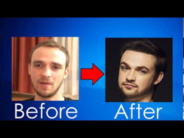 My video (Hair Transplant)