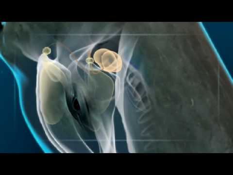 Sperm whale vs squid