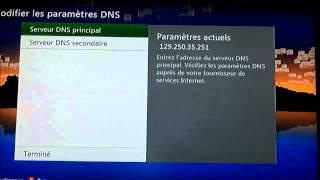 Modifier Le DNS De Sa Xbox 360 Pour Une Meilleure