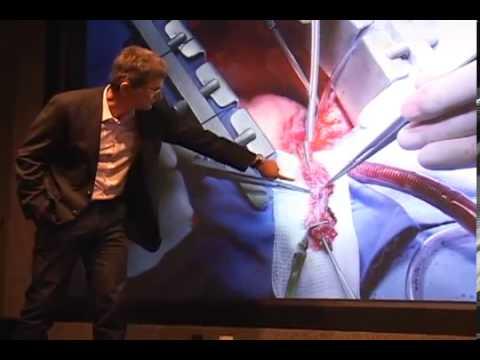 UFRN transmite cirurgia cardíaca em 4K