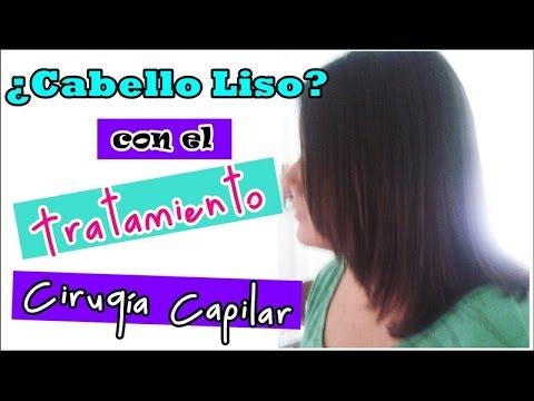 Cirugía Capilar (Mi experiencia)   Mente de Mujer por Carolina HD