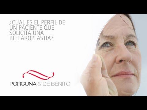 ¿Cual es el perfil de un paciente que solicita una Blefaroplastia?